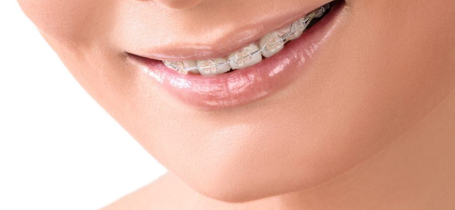 Improve your smile with clear braces